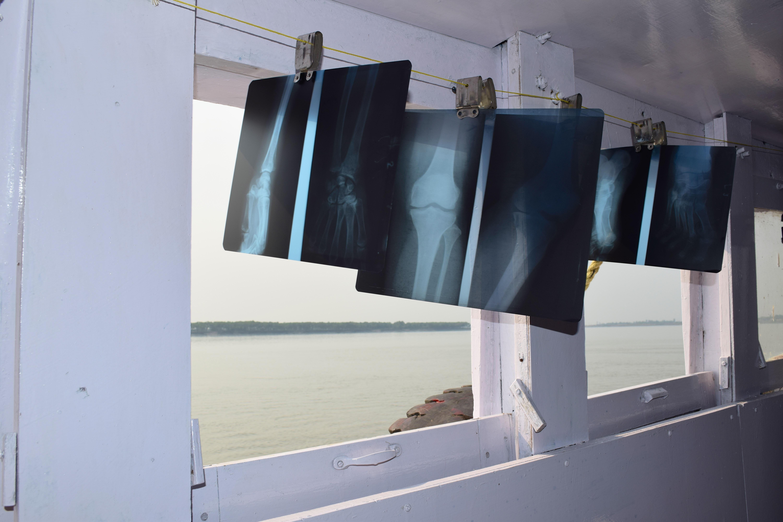 Radiografías en el interior del barco hospital